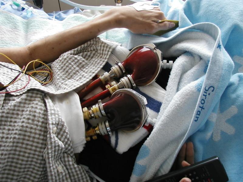 体外式補助人工心臓のポンプ